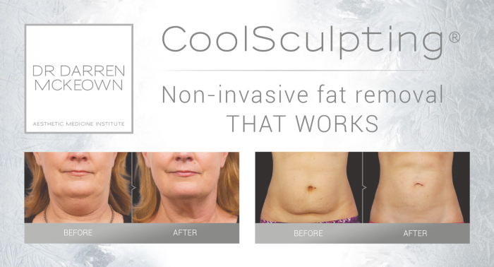 CoolSculpting with Dr Darren McKeown - non invasive fat removal that really works